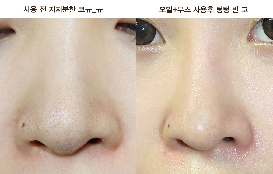 Innisfree jeju volcanic blackhead 3 step program how to use 1 wash your face open the step1 package and tightly cover your nose with the pore opening sheet wait 15 20 minutes and then slowly remove sciox Choice Image